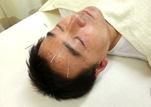 眼精疲労の鍼灸